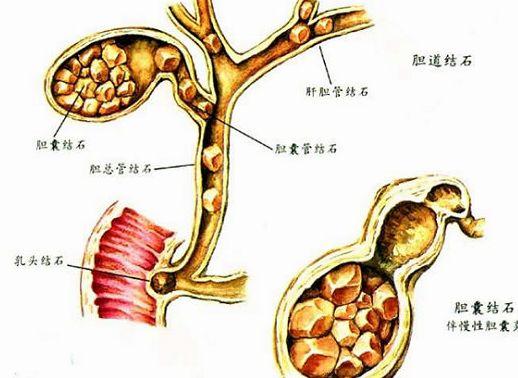 胆管结石的种类 胆管结石图