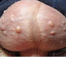 阴囊湿疹的症状图片_阴囊湿疹的治疗_阴囊湿疹用什么药膏-广州仁爱查happy-go點數